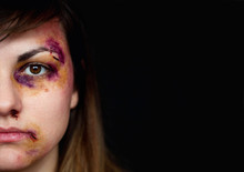 Beaten Young Woman With Bruise...