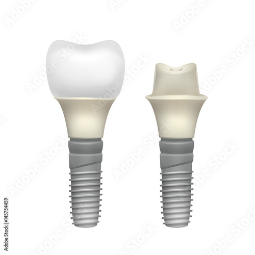 Photo Plastic assembled tooth implant