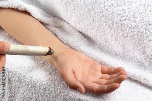 Valokuva  Woman undergoing therapy using moxa stick, closeup