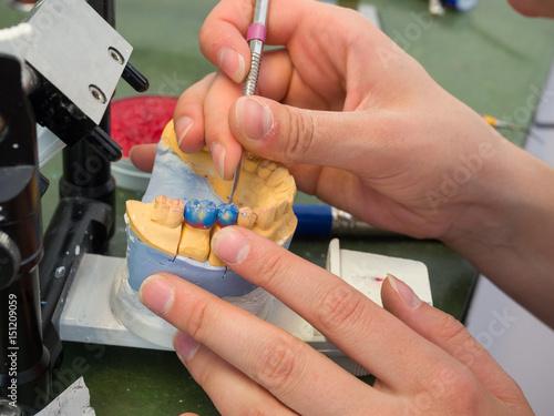 Valokuva  Working on an Tooth Stump