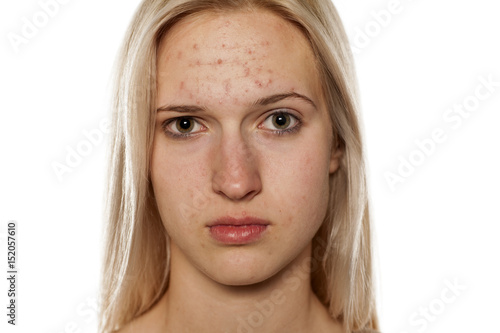 Photo Young blonde with pimples on her forehead