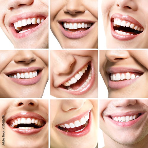 Smiles set. Perfect wide smiles of young people with great healthy white teeth, isolated. Dental care, whitening, stomatology, restoration of teeth, prosthetics, oral hygiene concept. #152414478