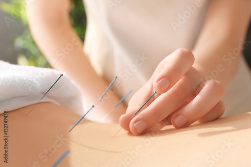 Young woman undergoing acupuncture treatment, closeup Wallpaper Mural