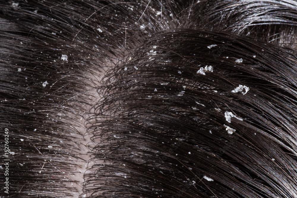 Fototapeta Dandruff on her dark hair
