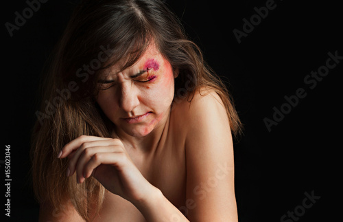Beaten Young Woman With Bruises On Her Face Abuse Violence Concept