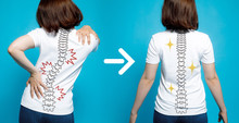 Chiropractic Before After Imag...