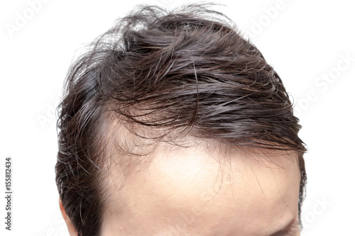 Bald man or woman worry about his or her less hairline on white background isola Canvas Print
