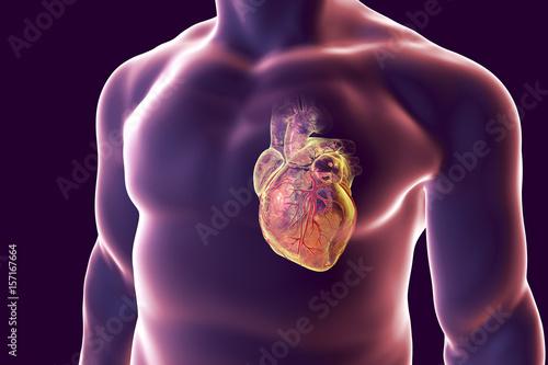 Human Heart With Heart Vessles Inside Human Body 3d Illustration