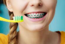 Woman With Teeth Braces Using ...
