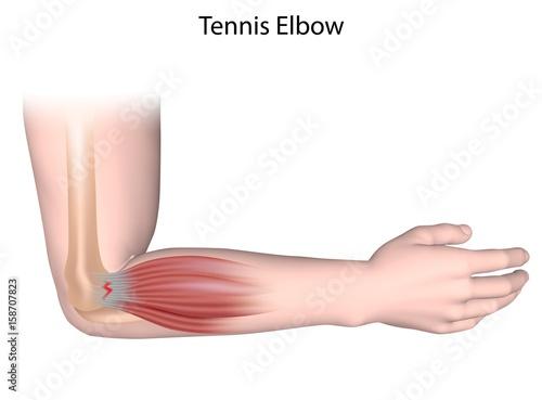 Photo Tennis elbow