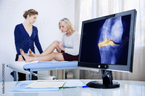 X-ray of a knee arthrosis Canvas Print