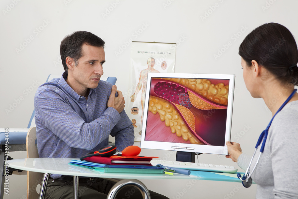 Fototapety, obrazy: Models On screen, drawing representing an artery obstructed by a thrombus caused by a plaque of atheroma
