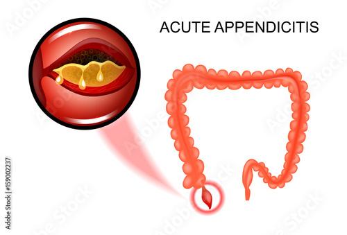 the inflammation of the Appendix – kaufen Sie diese Vektorgrafik und ...