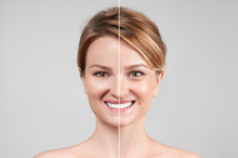 Woman Before And After Cosmeti...
