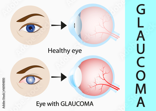 Fotografía  Glaucoma and healthy eye detailed structure.