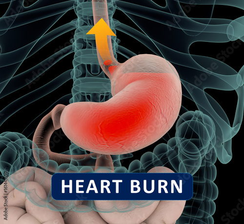acid reflux, gerd  gastroesophageal reflux disease  diagram with title and  arrow  stomach and digestive  human anatomy  3d illustration