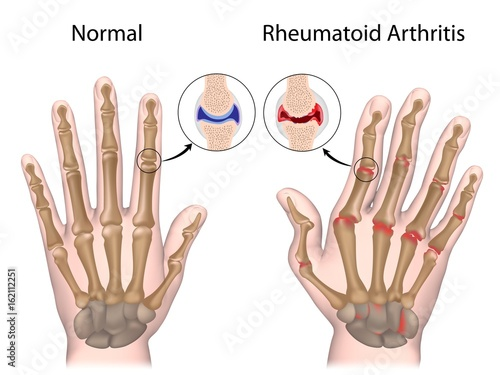 Rheumatoid arthritis of hand Wallpaper Mural
