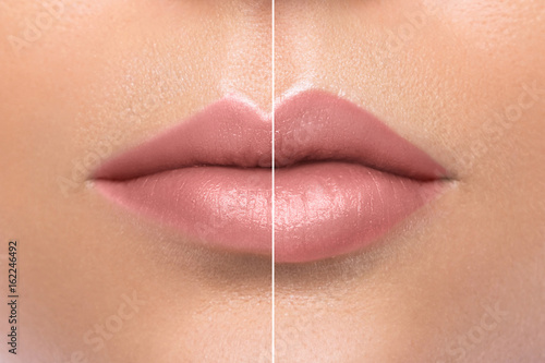 Comparison of female lips after augmentation Canvas Print