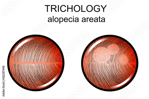 alopecia areata. trichology Canvas Print