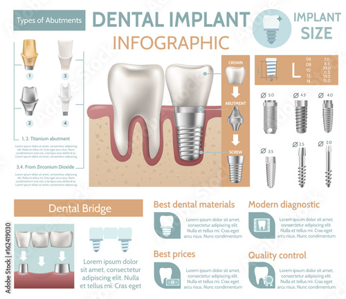 Dental implant tooth care medical center dentist clinic website infographic post Wallpaper Mural