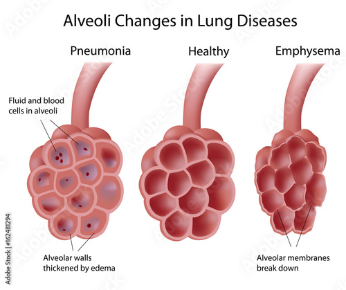 Photo Alveolus changes in lung diseases