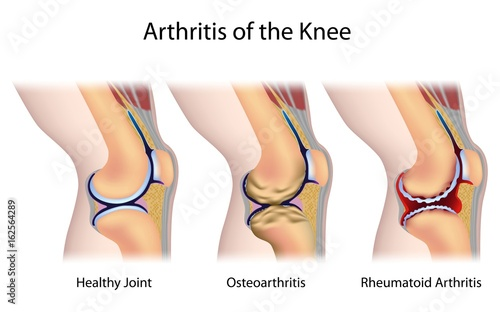 Common types of arthritis of the knee joint Canvas Print