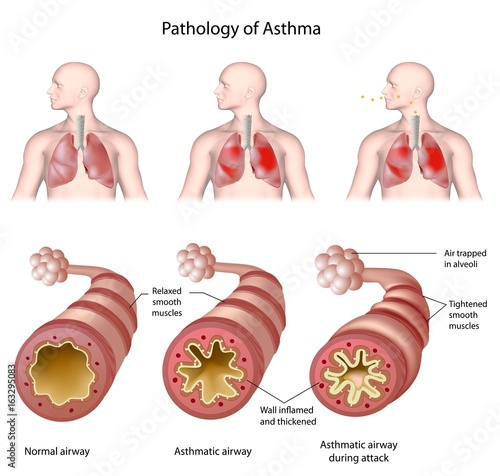 Anatomy of asthma, labeled. Wallpaper Mural