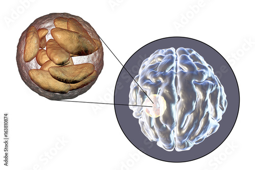 Brain abscess caused by parasitic protozoan Toxoplasma gondii and close-up view Wallpaper Mural