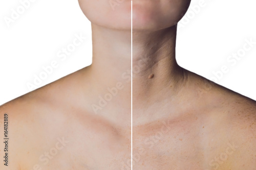 Fotografía  neck of a woman before and after botox. Young and old neck