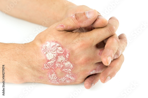 Fotografía  Psoriasis vulgaris on the male hands with plaque, rash and patches, isolated on white background