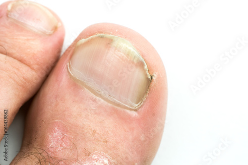 Fotografía  Closeup of Psoriasis vulgaris on the mans foot finger nails with plaque, rash and patches, isolated on white background