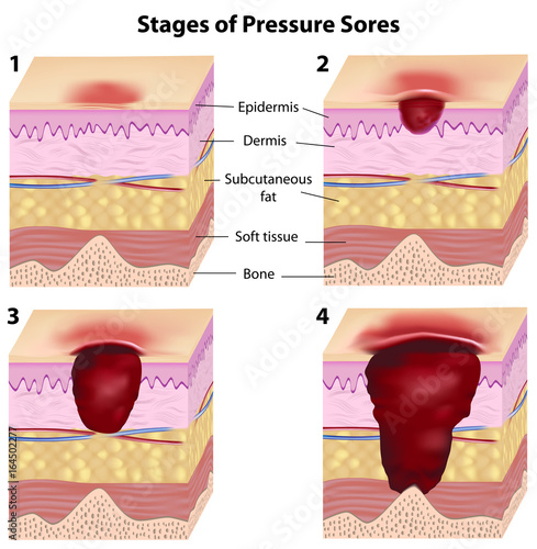Photo Stages of pressure sores