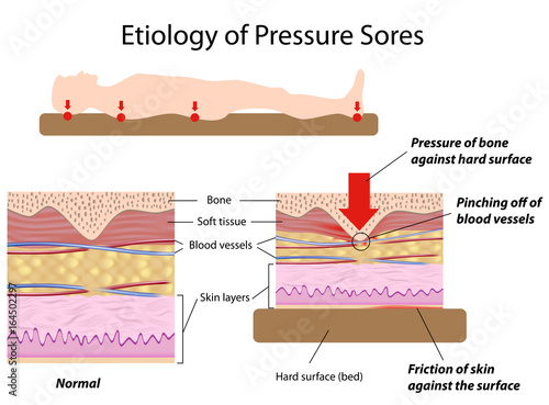 Etiology of pressure sores Canvas Print