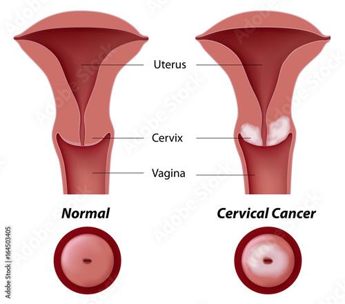 Fototapeta Cervical cancer