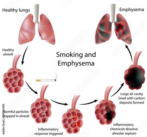 Smoking and Emphysema Wallpaper Mural
