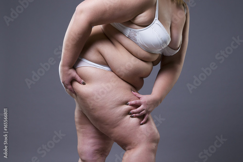 Fototapety, obrazy: Overweight woman with fat legs, obesity female body