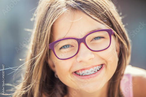 Fotografia  Happy smiling girl with dental braces and glasses