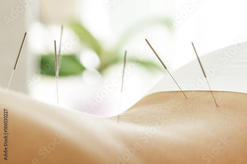 Female back with steel needles during procedure of acupuncture therapy Canvas Print