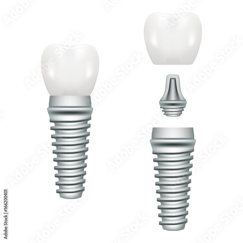 Realistic Dental Implant Structure With All Parts Crown, Abutment, Screw Isolated On A White Background Wallpaper Mural