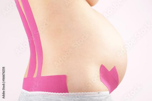 Fotografie, Obraz  Therapeutic tape on pregnant women.