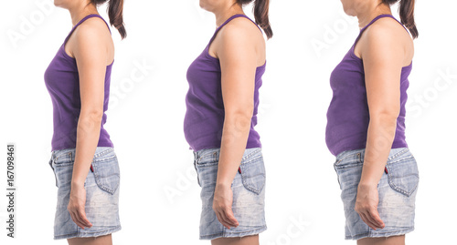 Fotografie, Obraz  before and after weight loss woman