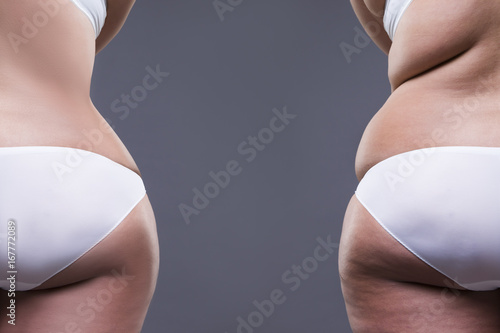 Overweight woman with fat legs and buttocks, before after concept, obesity femal Wallpaper Mural
