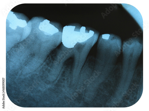 Photo X-Ray Negative Tooth Filling Amalgam