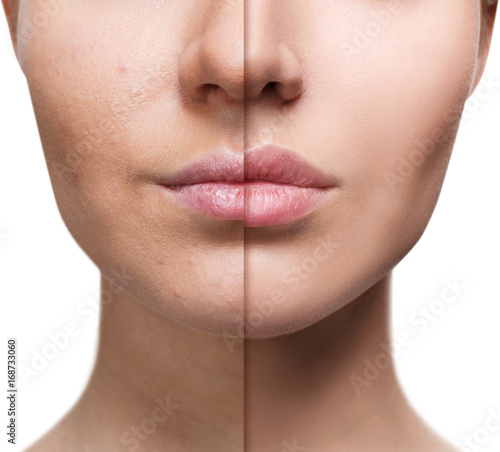 Fotografia Lips of young woman before and after augmentation