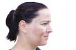 canvas print picture - Junge Frau mit Pigmentflecken auf den Wangen auf weißem Hintergrund