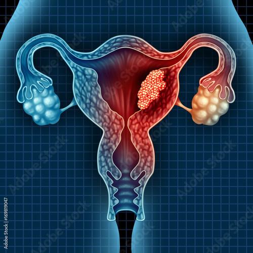 Valokuva  Uterus Cancer