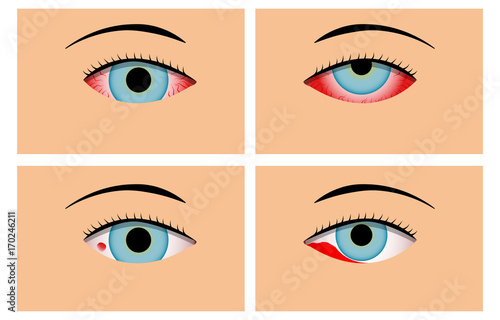 Photo Conjunctivitis and Red Bloodshot Eyes, vector