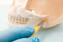 Temporomandibular Joint (TMJ, ...