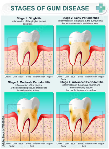 Photo Stage of Gum Disease