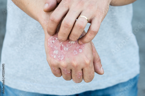 Fotografía  Man scratch oneself, dry flaky skin on hand with psoriasis vulgaris, eczema and other skin conditions like fungus, plaque, rash and patches